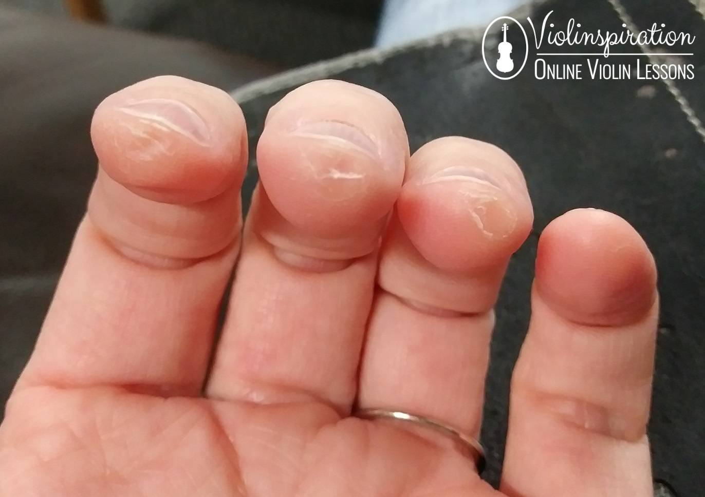 Differences Between a Violin and a Guitar - Calluses